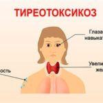 Симптомы, лечение и питание при тиреотоксикозе у женщин
