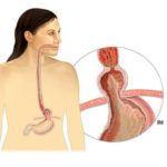 Симптомы, лечение и диета при грыже пищевода