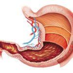 Эрозивный гастрит: лечение и диета