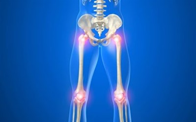Что можно и что нельзя есть при артрозе коленного сустава